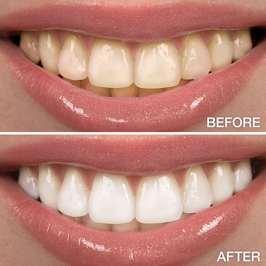 Before & after teeth whitening