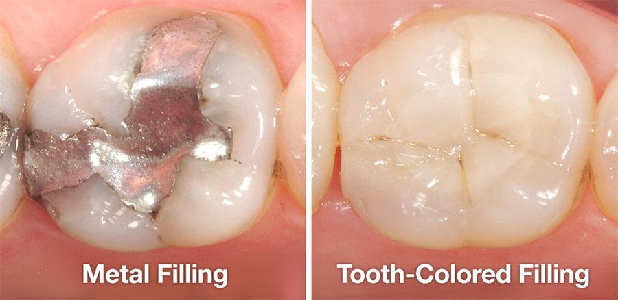 Metal vs tooth colored fillings
