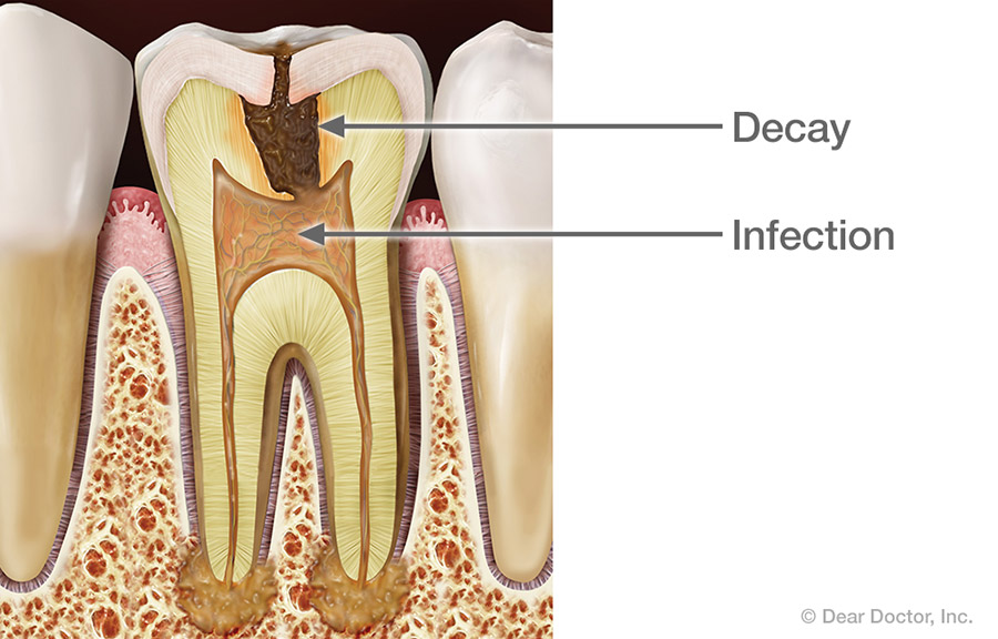 Tooth decay infection