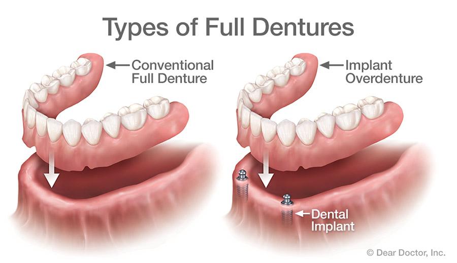 Types of full dentures
