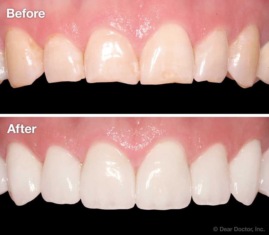 Veneers before & after