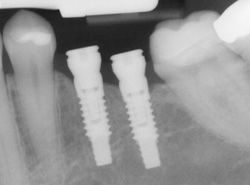 X-ray of an implant