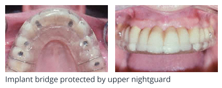 Implant bridge protected by upper nightguard