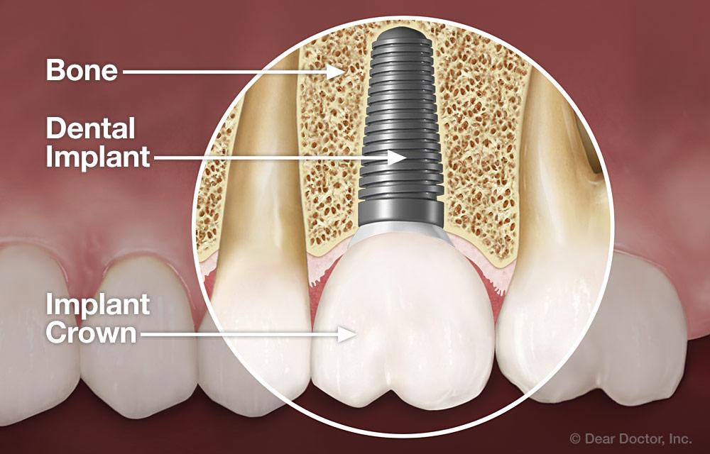 Dental implant anatomy