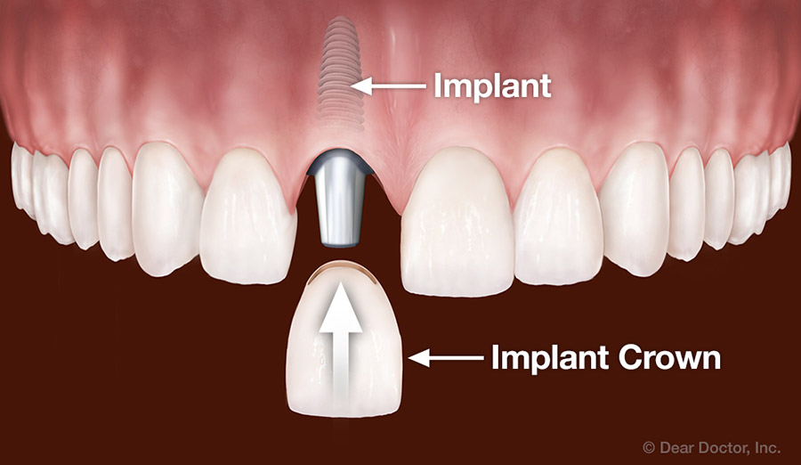 Implants replace one tooth