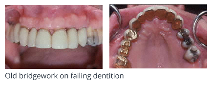 Old bridgework on failing dentition