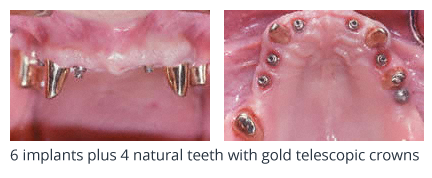 6 implants plus 4 natural teeth with gold telescopic crowns