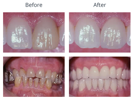 Before and After Treatment