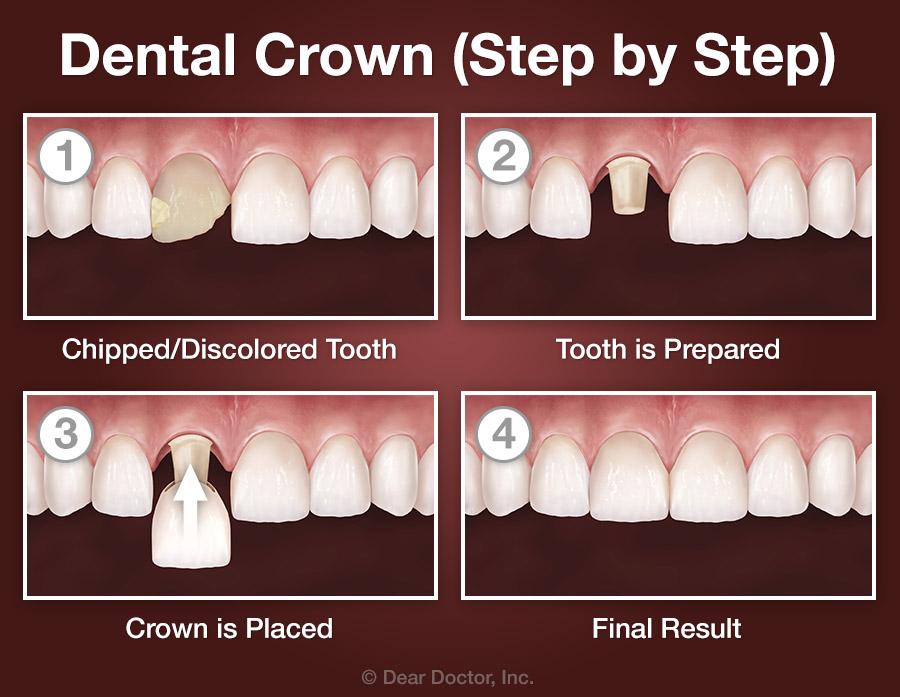 Crown step by step