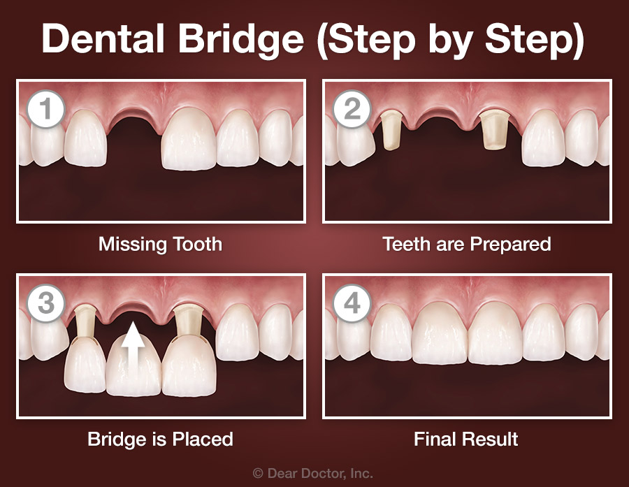 Bridge step by step